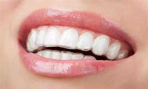 懷孕時患了牙周病怎麽辦?