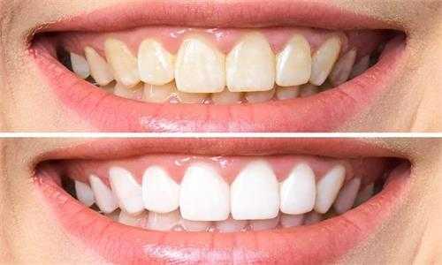 正頜外科適用於哪些方面?