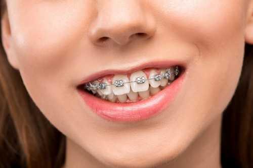 牙周病怎麼辦?