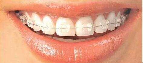 珠海箍牙幾多錢