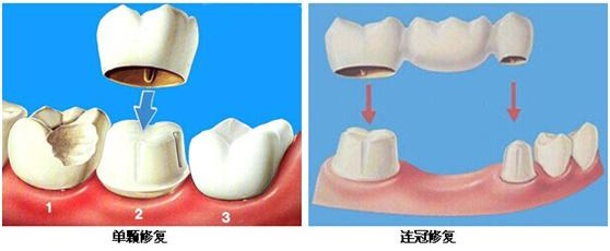 珠海固定假牙