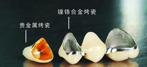 珠海烤瓷牙幾多錢