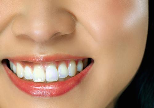 爲什麽有的乳牙之間容易嵌塞食物?