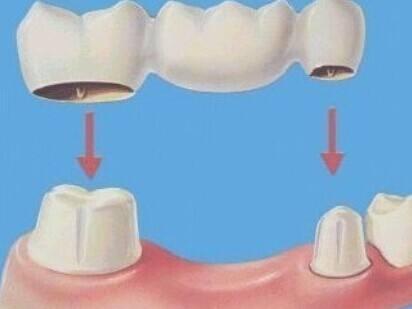 牙齒攝入氣量是越多越好嗎?