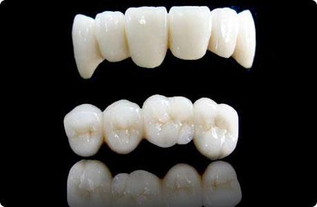 怎樣避免牙隱裂?